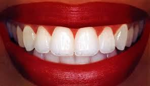 tooth-whitening-procedures