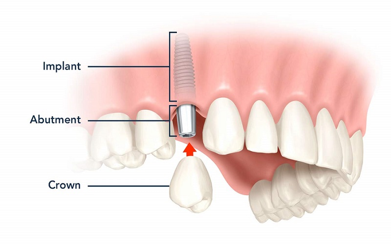 Common Types of Dental Implants