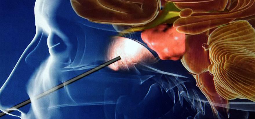 best neurosurgeon in India