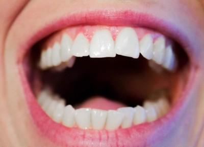 dentalhealth1