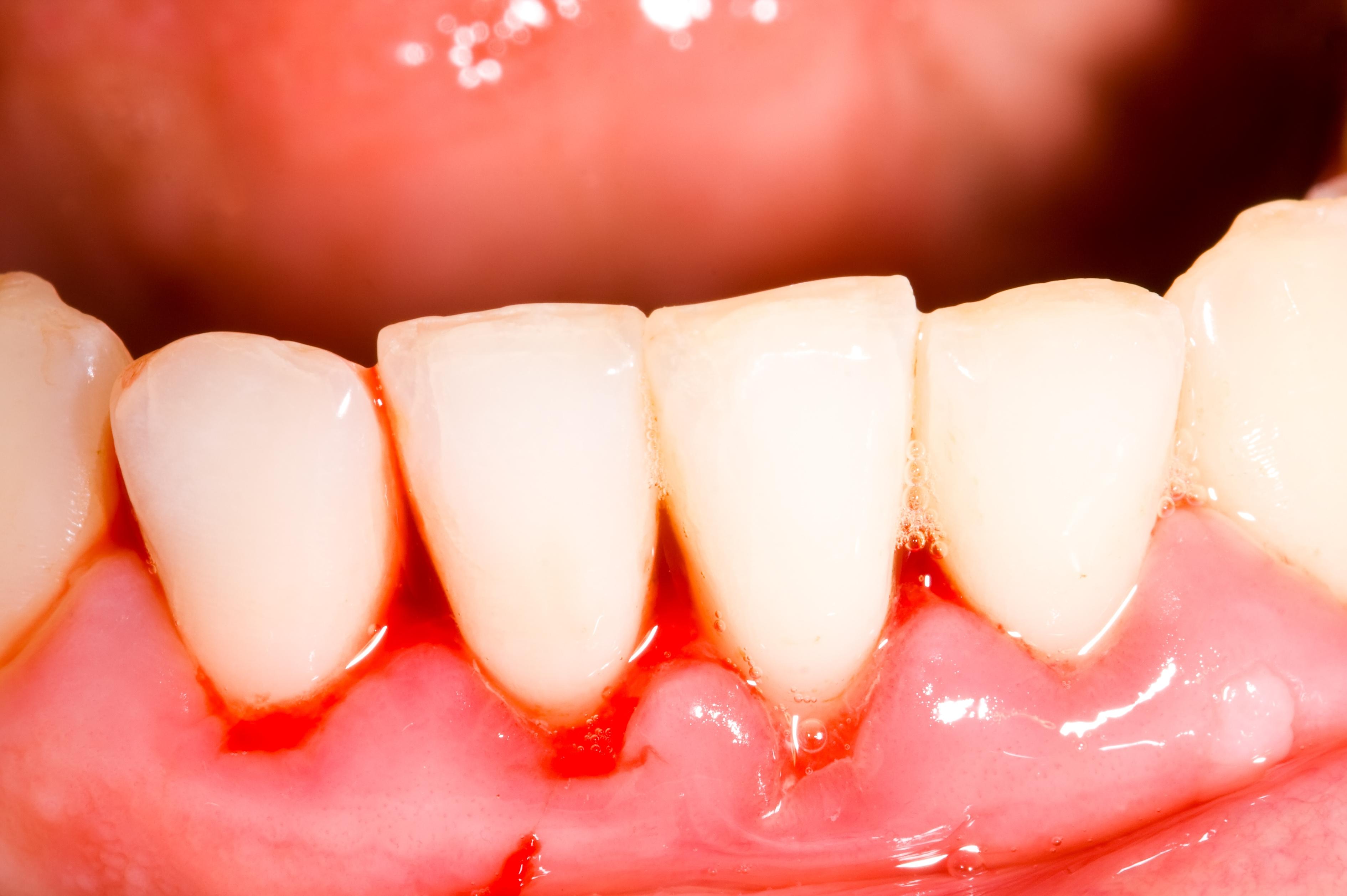 Tooth bleeding